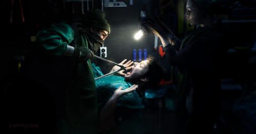 Itäblokkilaiset lääkärin jättipihdit, uhkaavat, ylijäämä